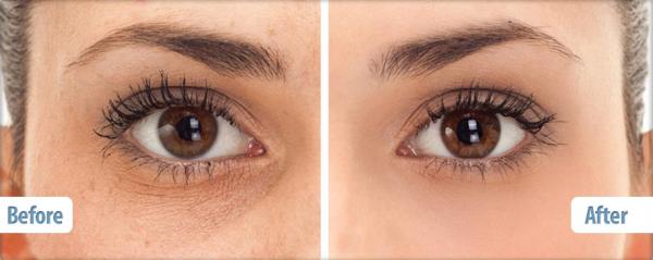"""SYN®-AKE có khả năng làm mềm các vết nhăn 52% và giúp giảm các đường """"chân quạ"""" ở mắt tới 24%"""