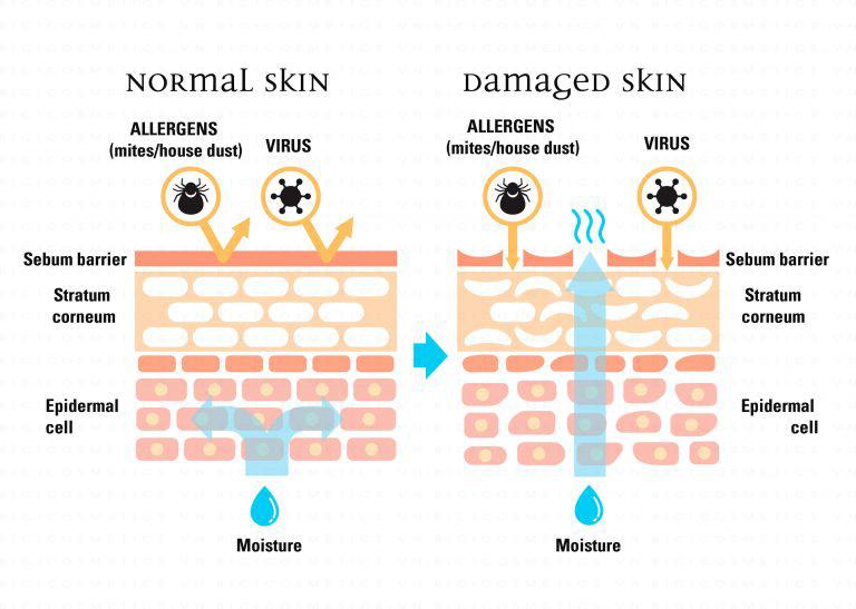 """Niacinamide: Thành phần """"thần thánh"""" với da công dụng khá được yêu thích trong sản phẩm dưỡng da cao cấp"""