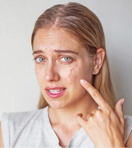 Quy Trình Skincare Khi Da Bị Breakout